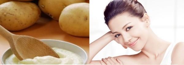 Cách trị mụn cám ở mũi bằng khoai tây cực hiệu quả ngay tại nhà