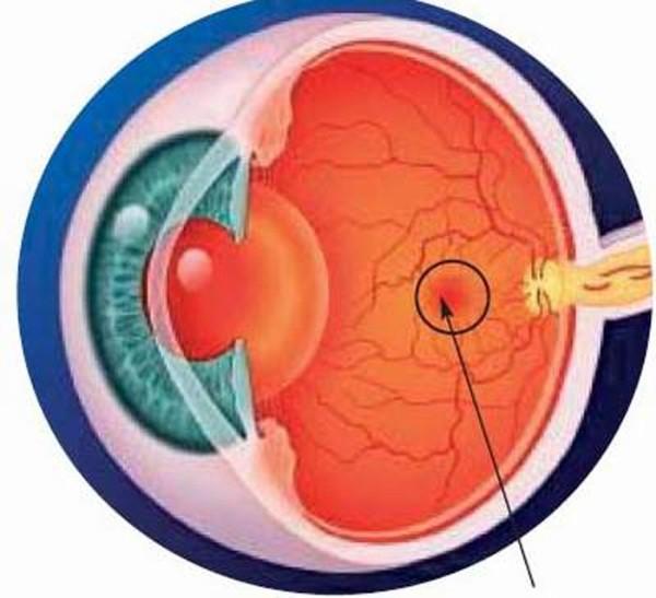 Tác dụng của Vitamin E còn đóng vai trò quan trọng trong việc ngăn ngừa thoái hóa điểm vàng ở mắt