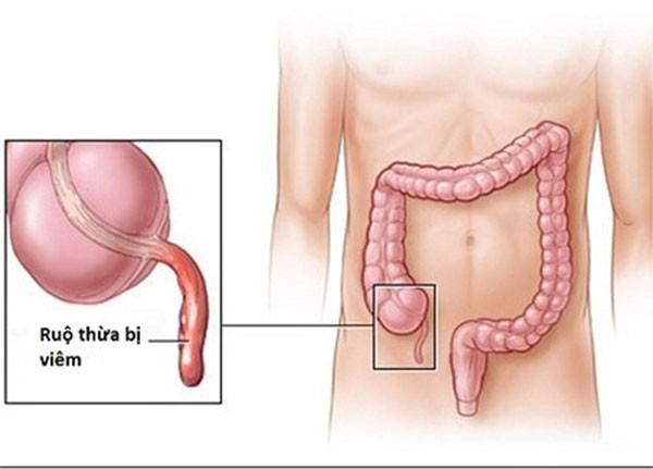 Triệu chứng đau ruột thừa cực nguy hiểm nếu bỏ qua - dấu hiệu đau ruột thừa
