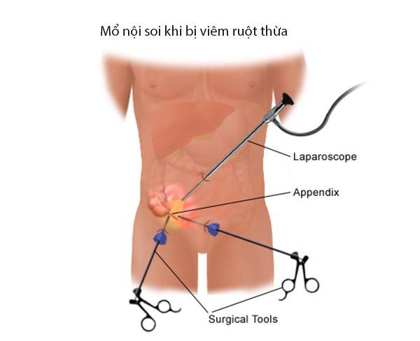 Mổ nội soi để cắt ruột thừa - triệu chứng đau ruột thừa - trieu chung dau ruot thua