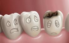 Cách chữa sâu răng hàm không cần tới nha sĩ